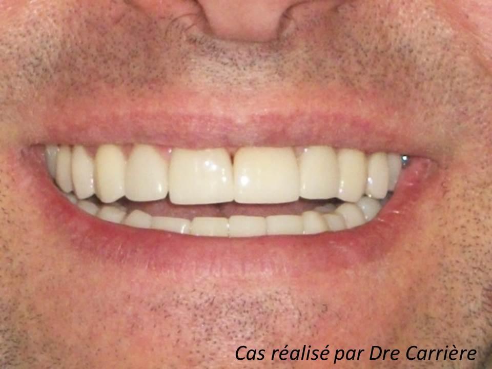 16 facettes de porcelaine Clinique dentaire Carrière