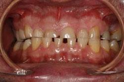 Bruxisme  Clinique dentaire Carrière
