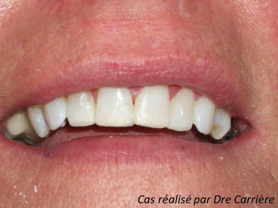 Usures dentaires corrigées à l'aide de composite (après) Clinique dentaire Carrière