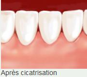 Après la greffe  Clinique dentaire Carrière