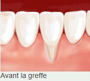 Avant la greffe Clinique dentaire Carrière