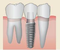 Couronnes sur implants Clinique dentaire Carrière