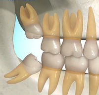 Chirurgie buccale  Clinique dentaire Carrière