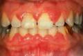 gingivite clinique dentaire Carrière