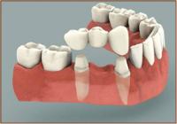 Ponts  Clinique dentaire Carrière