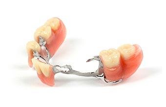 Prothèse partielle Clinique dentaire Carrière