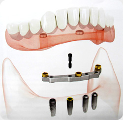 protheses inf sur implants