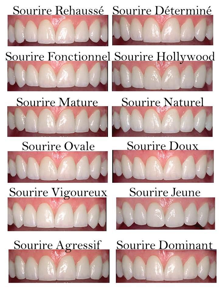 Sourire  Facette Clinique dentaire Carrière