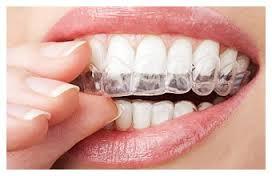 Blanchiment à l'aide de coquilles thermoformées Clinique dentaire Carrière