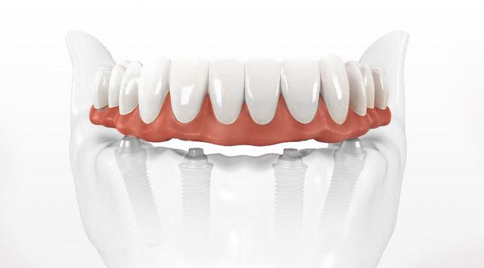 prothèse sur implantsClinique dentaire Carrière