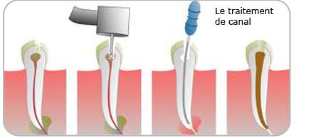 traitement de canal Clinique dentaire Carrière