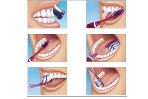 Avez-vous la bonne technique de brossage  clinique dentaire Carriere