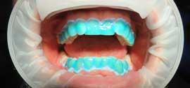 blanchiment a la chaise clinique dentaire Carriere
