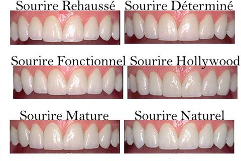 Esthétique du sourire Clinique dentaire Carrière